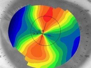 topografia ottica bolzoni